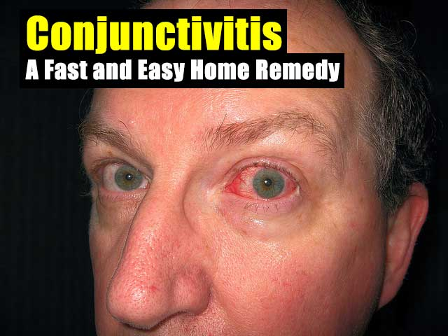 Conjunctivitis: A Fast and Easy Home Remedy