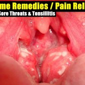 Home Remedies / Pain Relief For Sore Throats & Tonsillitis