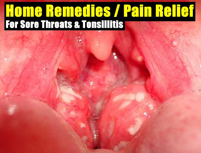 And Home remedies for strep throat pain Your