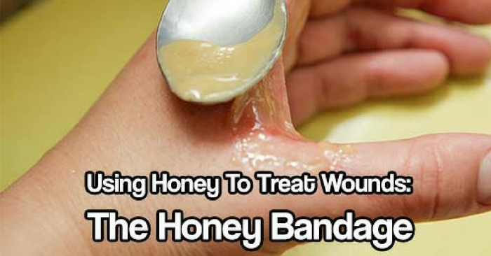 wound healing capacity using honey Paintings on cave walls from over 8,000 years ago have shown people using honey on wounds1 lee, ds, sinno, s & khachemoune, a honey and wound healing: an.