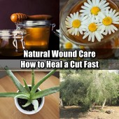 Natural Wound Care – How to Heal a Cut Fast