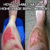 How To Make Natural Home-Made Burn Ointment