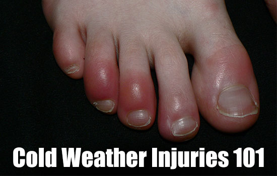 Cold Weather Injuries 101