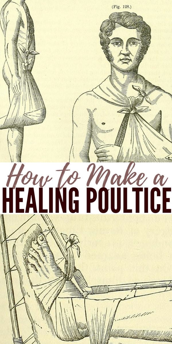 How to Make a Healing Poultice — A poultice, also called cataplasm, is a soft moist mass, often heated and medicated, that is spread on cloth over the skin to treat an aching, inflamed, or painful part of the body. It can be used on wounds such as cuts.
