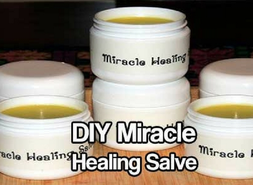DIY Miracle Healing Salve — Healing Salves have been used to treat wounds and promote healing on every continent and by every culture for thousands of years. Even in modern medicine, different types of salves are used to treat burns (aloe based gels), keep infection down and promote healing (antibacterial ointments), and correct skin conditions (eczema, psoriasis).