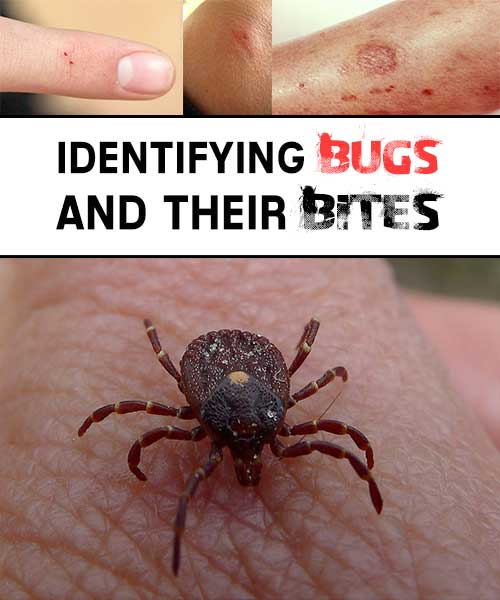 Identifying Bugs and Their Bites - This time of year, we all tend to spend a little more quality time outdoors. But even the best day outside can be tainted by insect bites… Itchy, irritating, possibly infectious insect bites. It is important, therefore, to not only be able to identify biting insects, but also their bites for proper treatment and potential health risks.