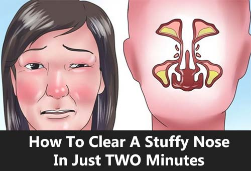 How To Clear A Stuffy Nose In Just TWO Minutes