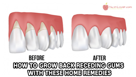 how to make receded gums grow back