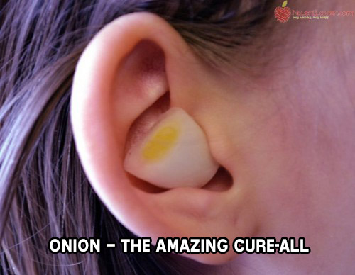 Onion – The Amazing Cure-All