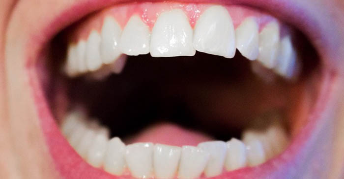 """The Realities Of Tooth Removal In A SHTF Situation - Here is the bottom line on removing teeth. I've been doing it for almost 35 years, and I would be lying if I told you that I thought I could unload one of my own without proper instruments and sufficient local anesthetic. Without """"novocaine,"""" taking out an infected or acutely inflamed permanent tooth would be more difficult that using a pliers to remove one of your fingernails. Even if you managed to remove a portion of the tooth, whatever remains will still provide a nice dinner for every bacteria that enters your mouth. Post-extraction infection can be life-threatening, especially if the source of that infection is still nestled in your jaw bone. Even the most potent antibiotics wouldn't control the infection for long."""