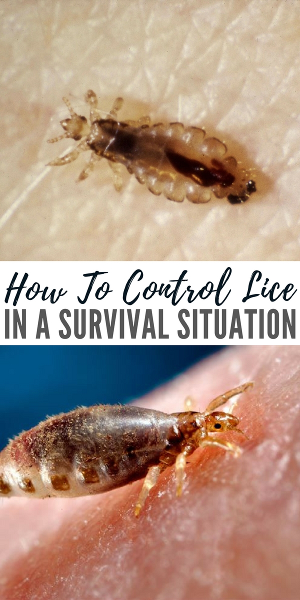 How To Control Lice in a Survival Situation - Even in our civilized and modern country, anyone with school age children knows that lice happens. While it's a royal pain to have to do all the washing, not to mention treatments on the kids, overall we have it pretty easy. It's a problem that can be dealt with in a week or less.