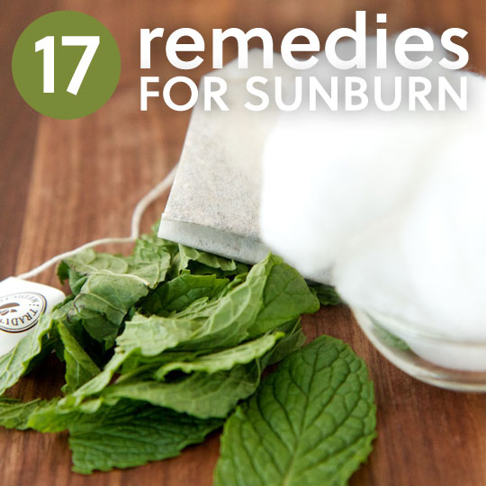 17 Soothing Natural Sunburn Home Remedies - Natural home remedies for minor are not only affordable, but they are very easy to make with items you have on hand. The best remedy is to protect yourself before you go out into the sun, the long term effects just aren't worth it.