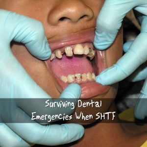 Surviving Dental Emergencies When SHTF - Surviving dental emergencies, even in the best of times, can be very painful to say the least. In the most extreme cases, dental emergencies can be life threatening.