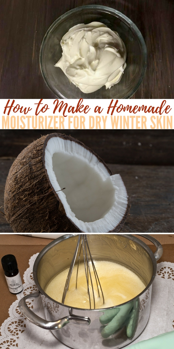How to Make a Homemade Moisturizer for Dry Winter Skin — Do your heels look like the hide of an alligator? Is your skin chapped from the cold and the wind? Are your legs so dry that little flakes come off with your pants?