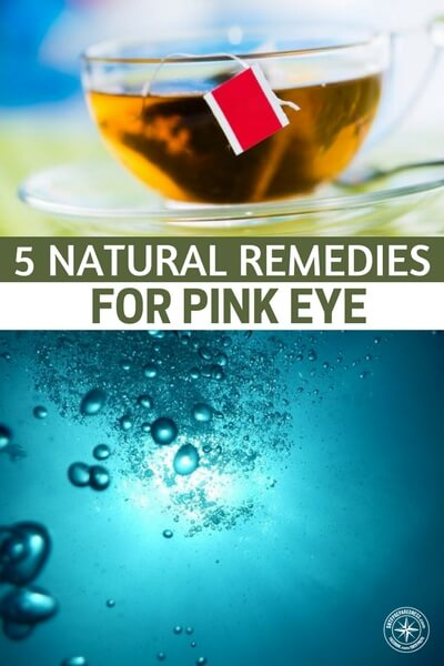 5 Natural Remedies For Pink Eye - Pink Eye, also called conjunctivitis, is an extremely contagious bacterial or viral infection of the outermost layer of the eye and the inside surface of the eyelid. It is a common condition this time of year, when pollen counts are high, allergies are running rampant.