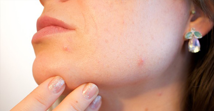 Skin Problems and Their Treatments - This article is written by one of strongest voices in prepper medicine in the entire community. It is about handling skin problems that could occur from the conditions of the fallen world. You will find that there are many more than you thought and they are all pretty common. If you know how to handle them they are also not much of a big deal.