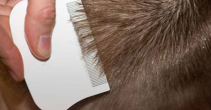 how to effectively get rid of lice