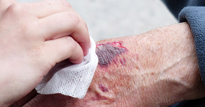 How to Get Mad Wound Care Skills - There was a time when wound care was a matter of life and death. People didn't always have Neosporin in the cabinet and a doctor one phone call away.