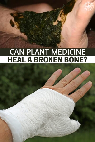 Can Plant Medicine Heal a Broken Bone? - No this article is merely going to ask a simple question that might get us closer to the above answer.