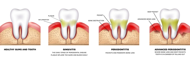 Periodontal infection is an infection in the gums and soft tissue around the teeth.