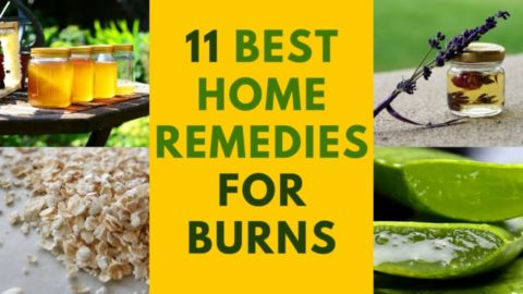 11 Best Home Remedies for Burns