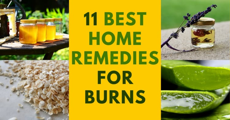 11 home remedies for burns and how to heal them when a doctor is not available.