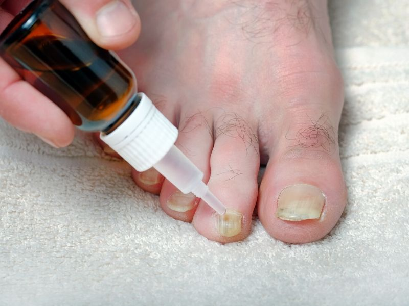 Brown glass bottle with dropper applying medication to fungus affected toes
