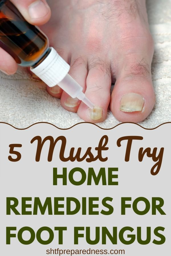 5 must try home remedies for foot fungus. #naturalremedies #homeremedies #footfungus #atheletesfoot #smellyfeet
